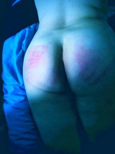 Blue-toned photo of red lash marks on my bum